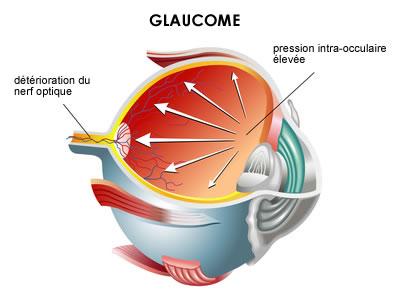 glaucome1